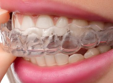 Can I Have Invisalign?